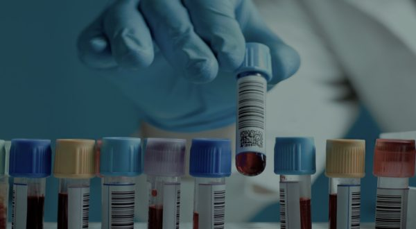 Blood Tests for Male Fertility